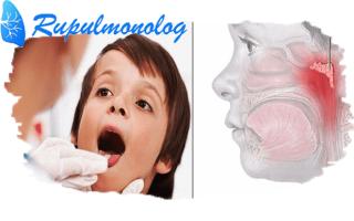 Как лечить кашель при аденоидах