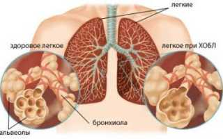 Хроническая обструкти́вная болезнь лёгких (ХОБЛ)