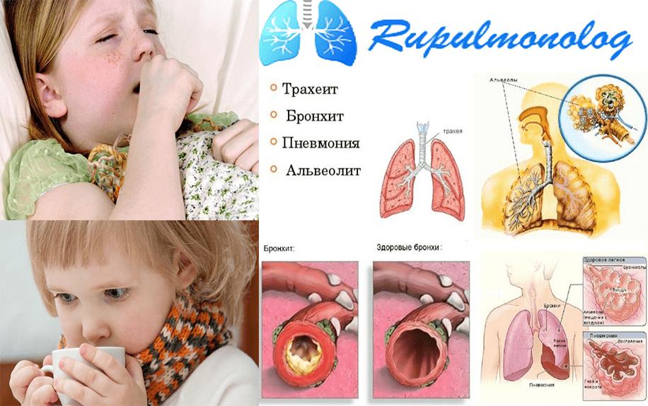 Дыхание со свистом у ребенка и кашель